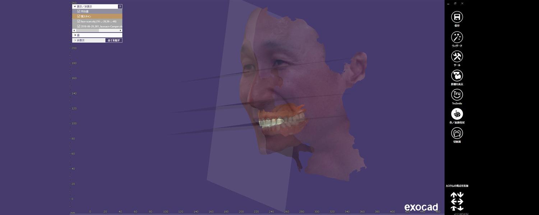 snap exocad design